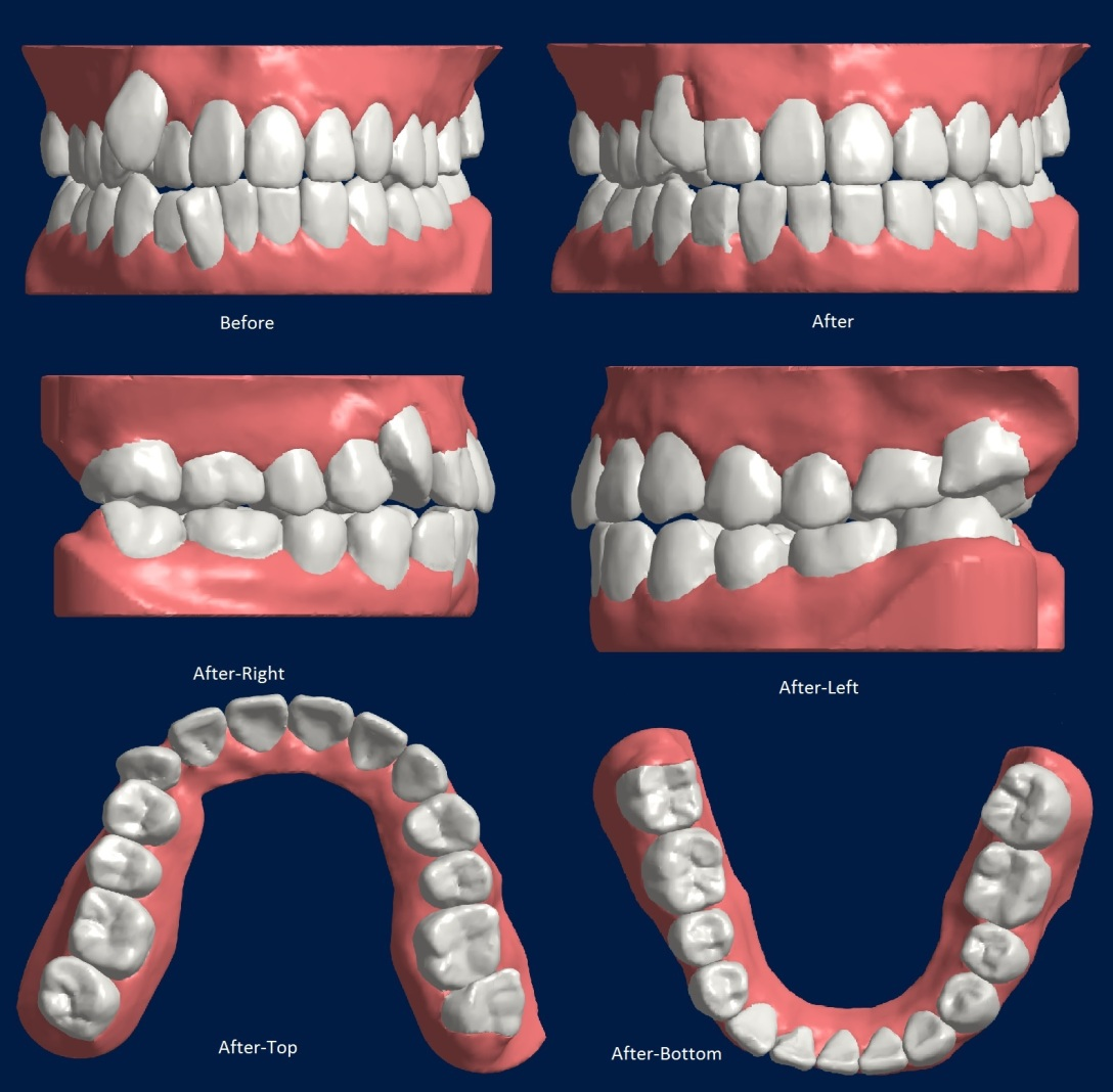 Length Smile Direct Club Clear Aligners