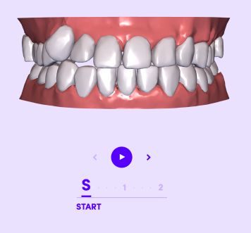 Dimensions In Centimeters Clear Aligners  Smile Direct Club